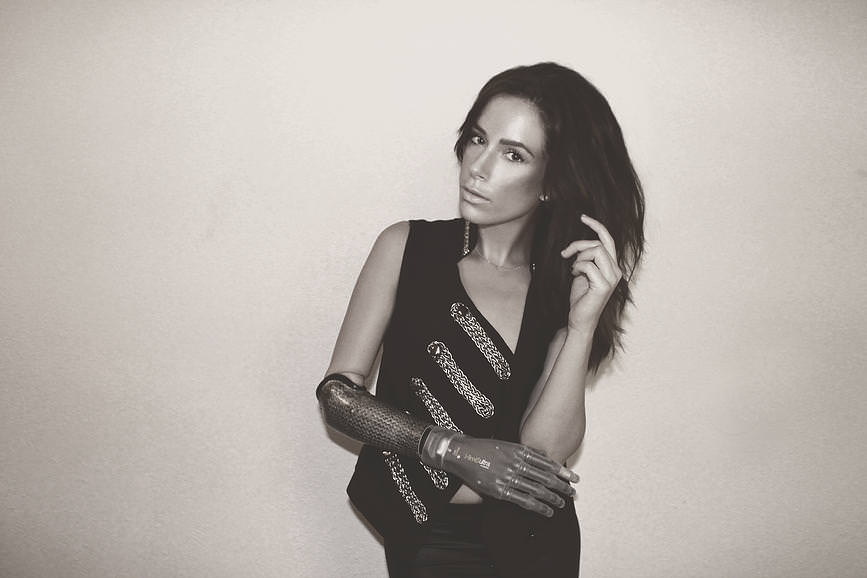 バイオニックアームを身に付けるモデルRebekah Marineさん